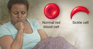 Normal red cell vs. Sickle cell