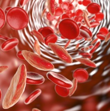 Healthy Red cell vs Sickle cell